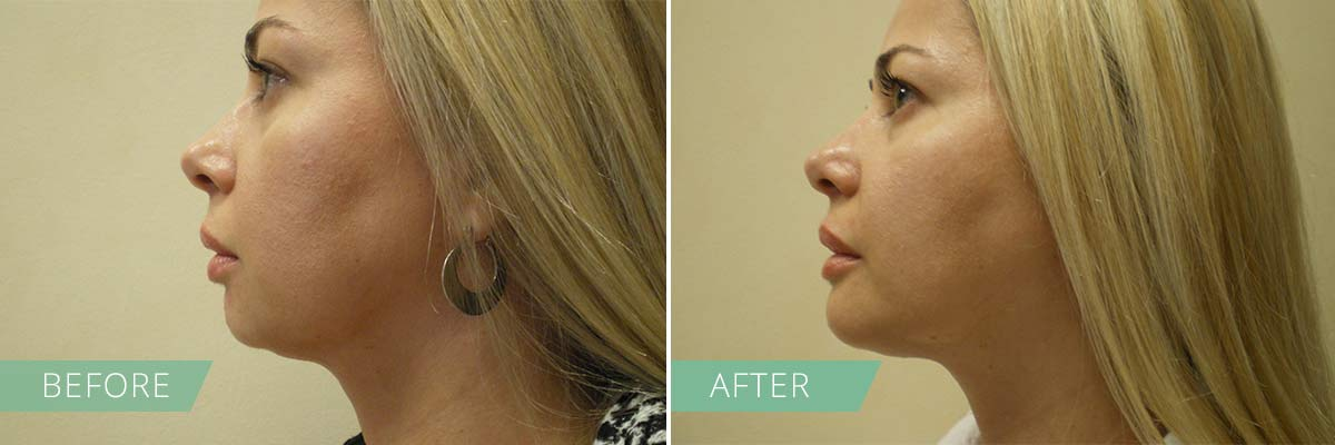 Cheek & Chin Augmentation – Dr  Bose Yalamanchi, M D